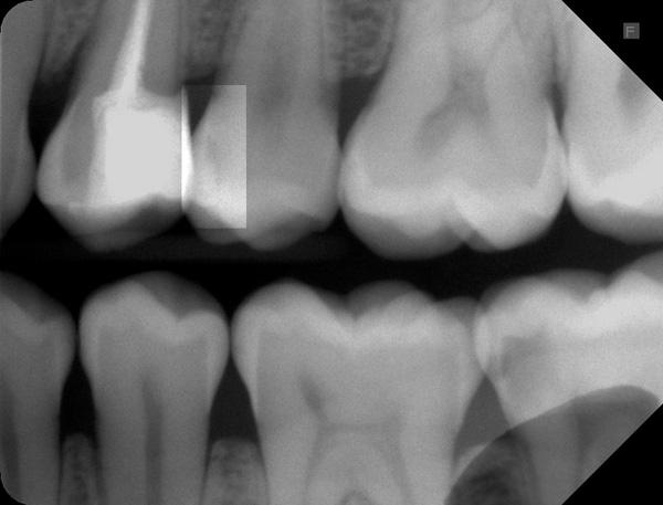 Zahnzwischenraumkaries-25-m-