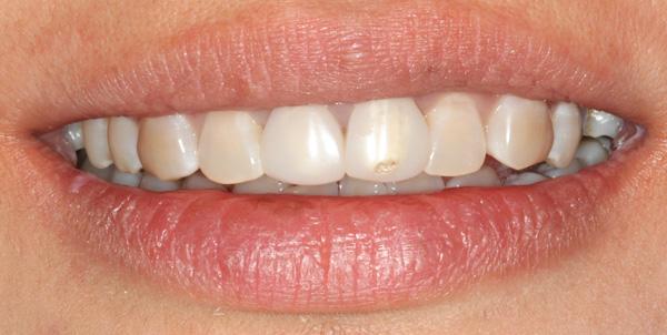 11-21-Kunststoffkronen-smile