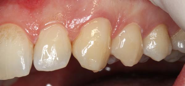 Komposit-Zahnhalsdefekte