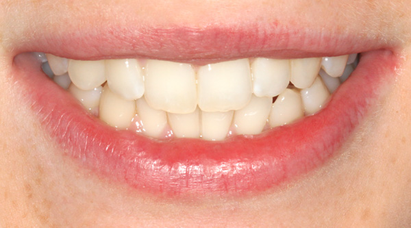 smile-2a