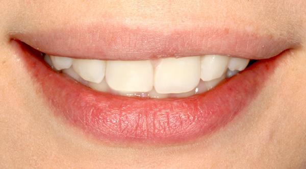 smile-a