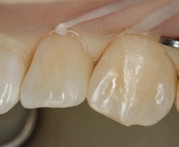 Komposit-zur-Zahnverbreiterung