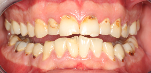 pre-treatment-front-2