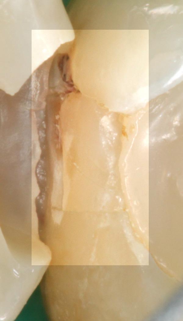 Fuellungsrandkaries-1-Detail