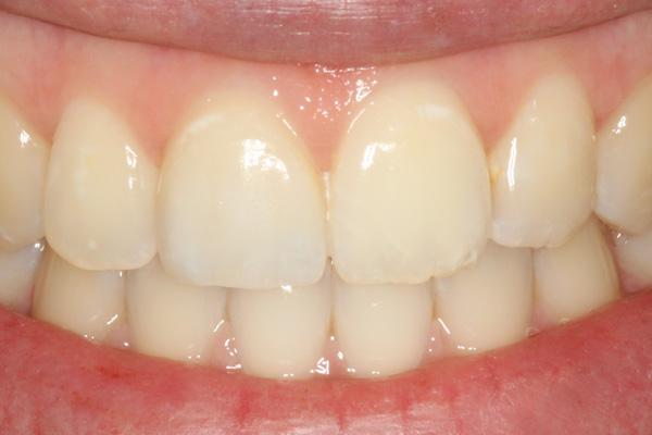 Keramikteilkrone-Zahn-11-Detail02