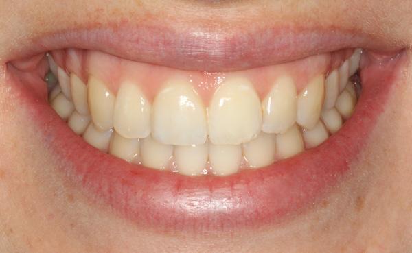Keramikteilkrone-Zahn-11