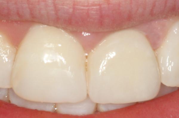 smile-2-Detail