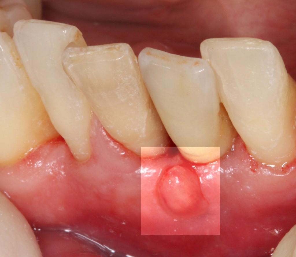 Filstel-zwischen-Implantat-31-und-Zahn-41