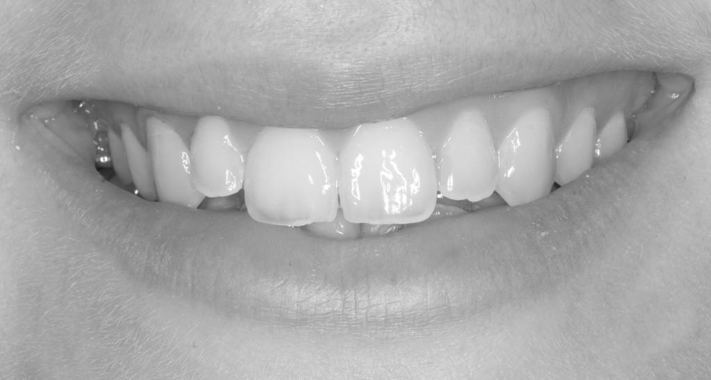 smile-5