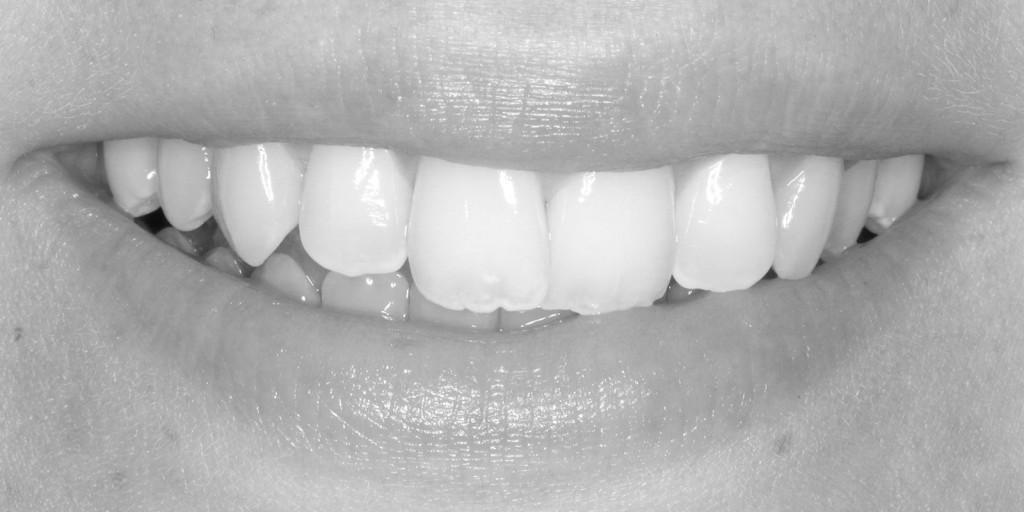 smile-6r