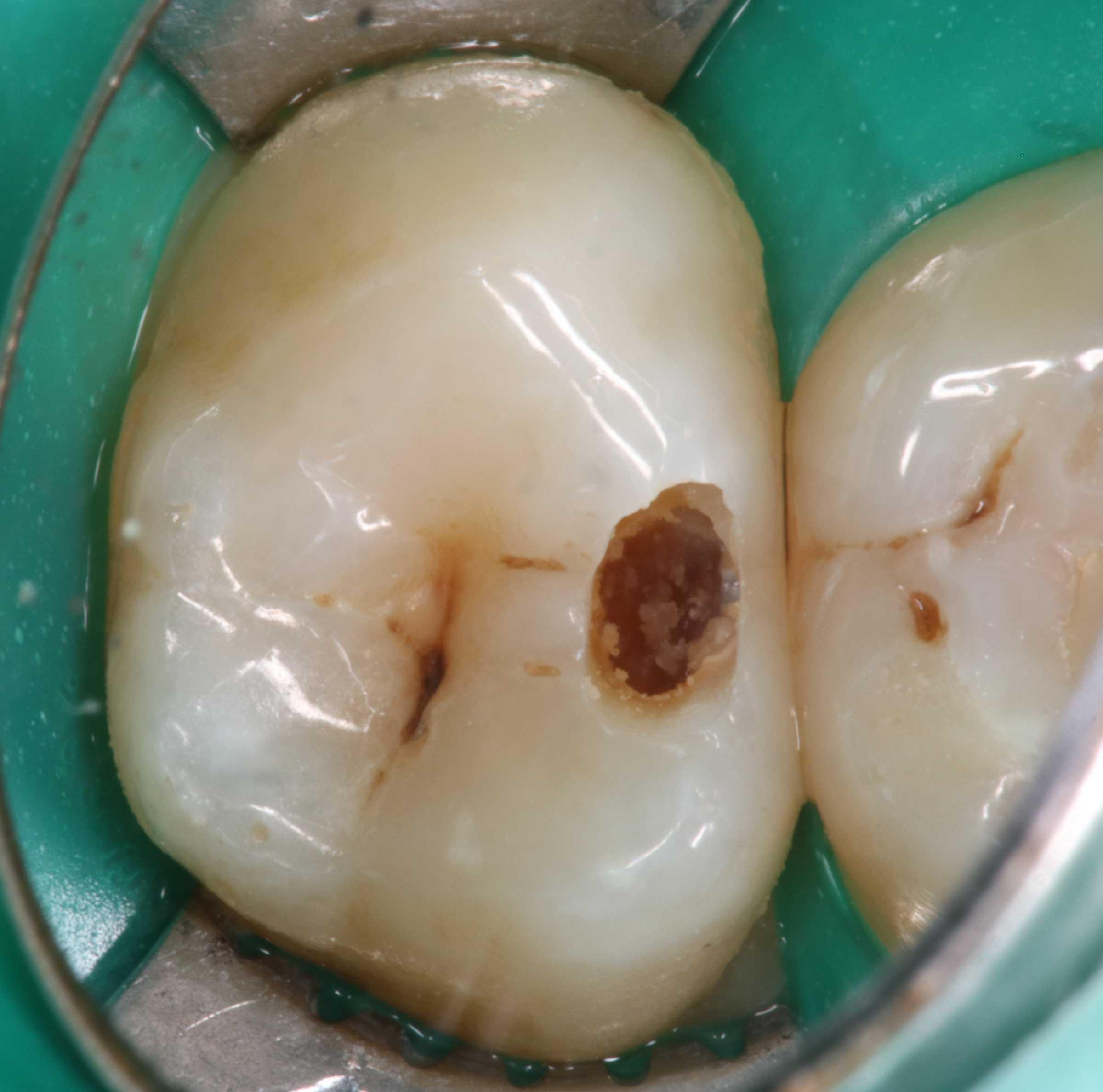 Zahnzwischenraumkaries-18-1