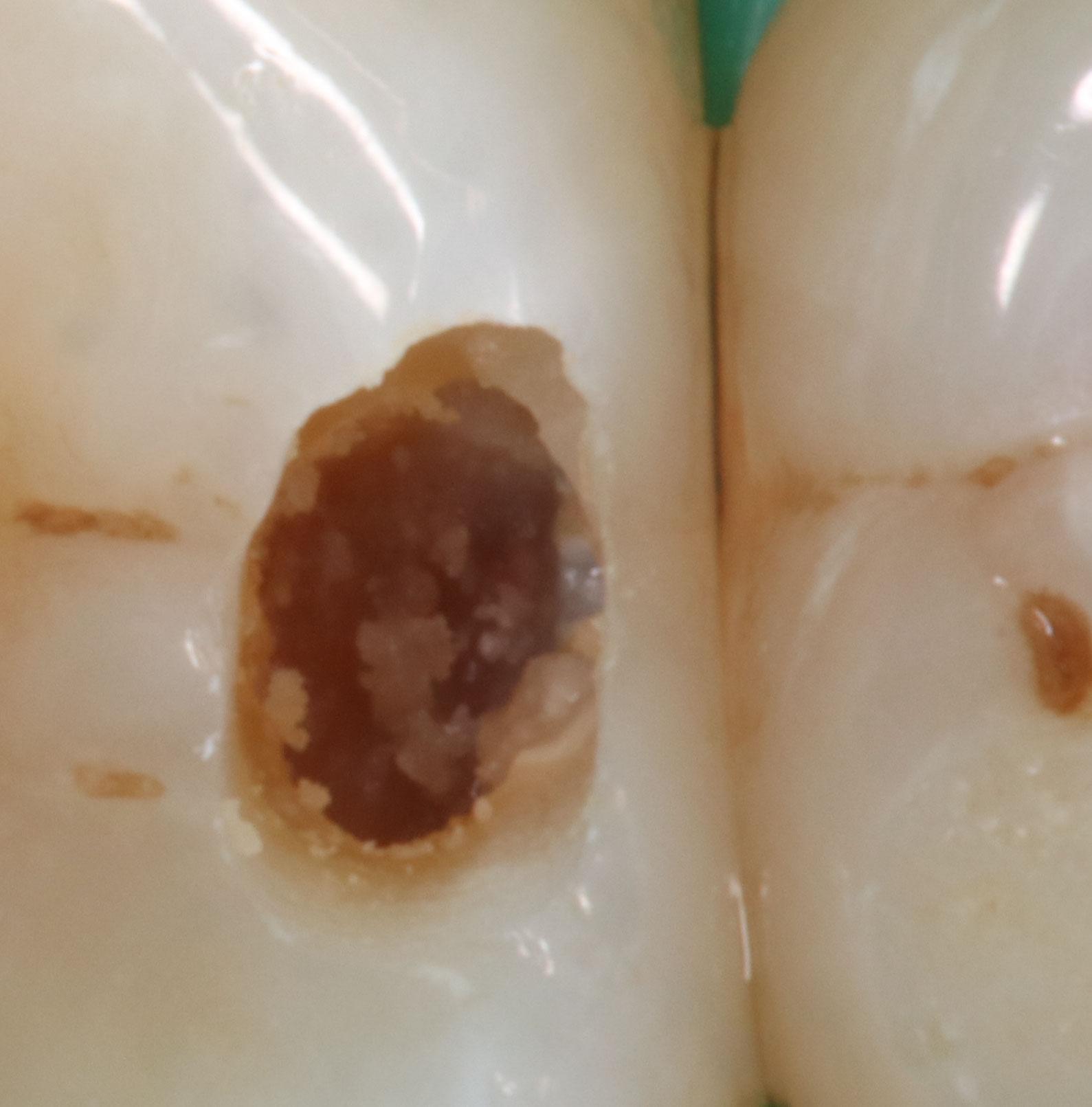 Zahnzwischenraumkaries-18-2