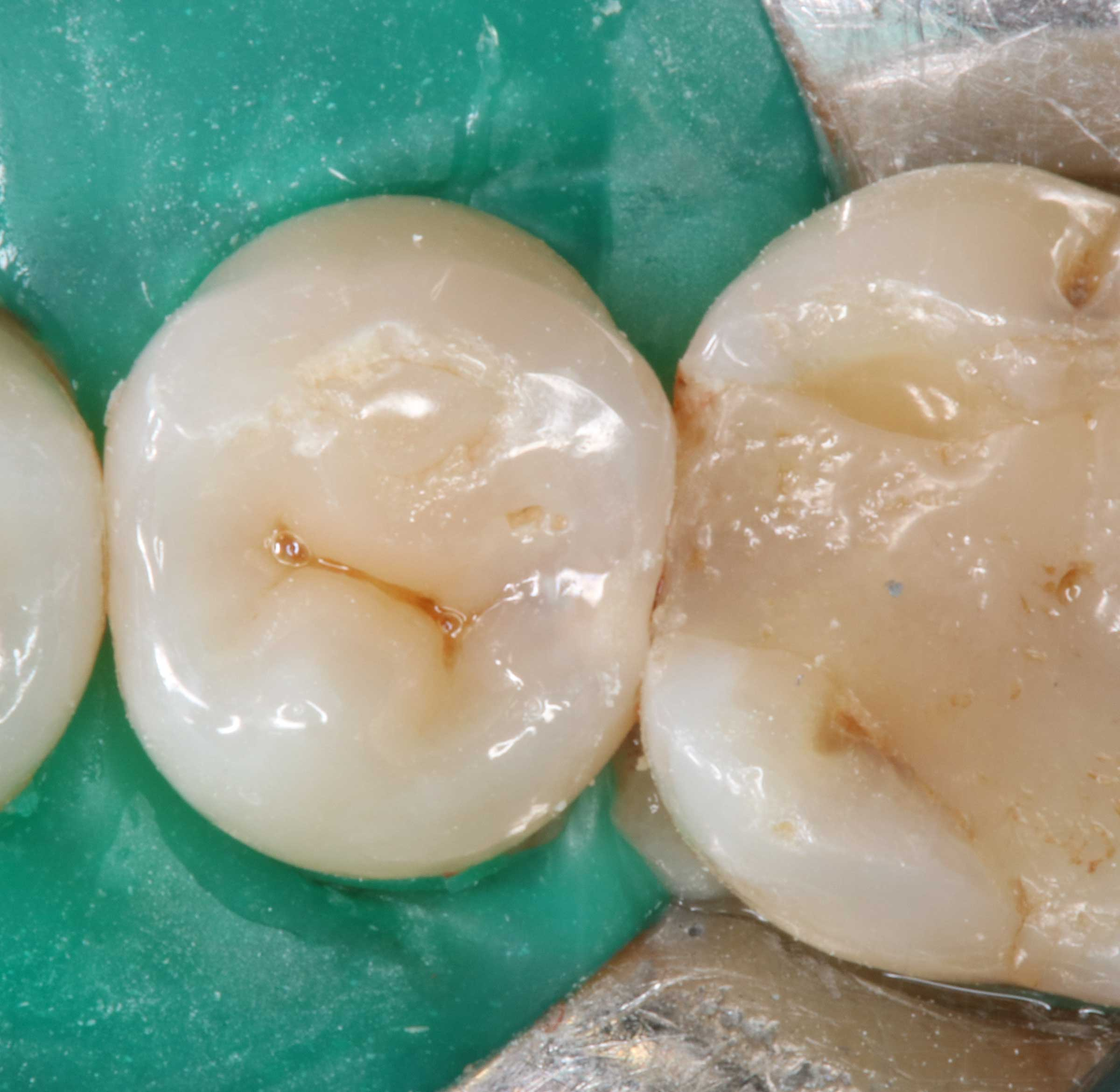 Zahnzwischenraumkaries