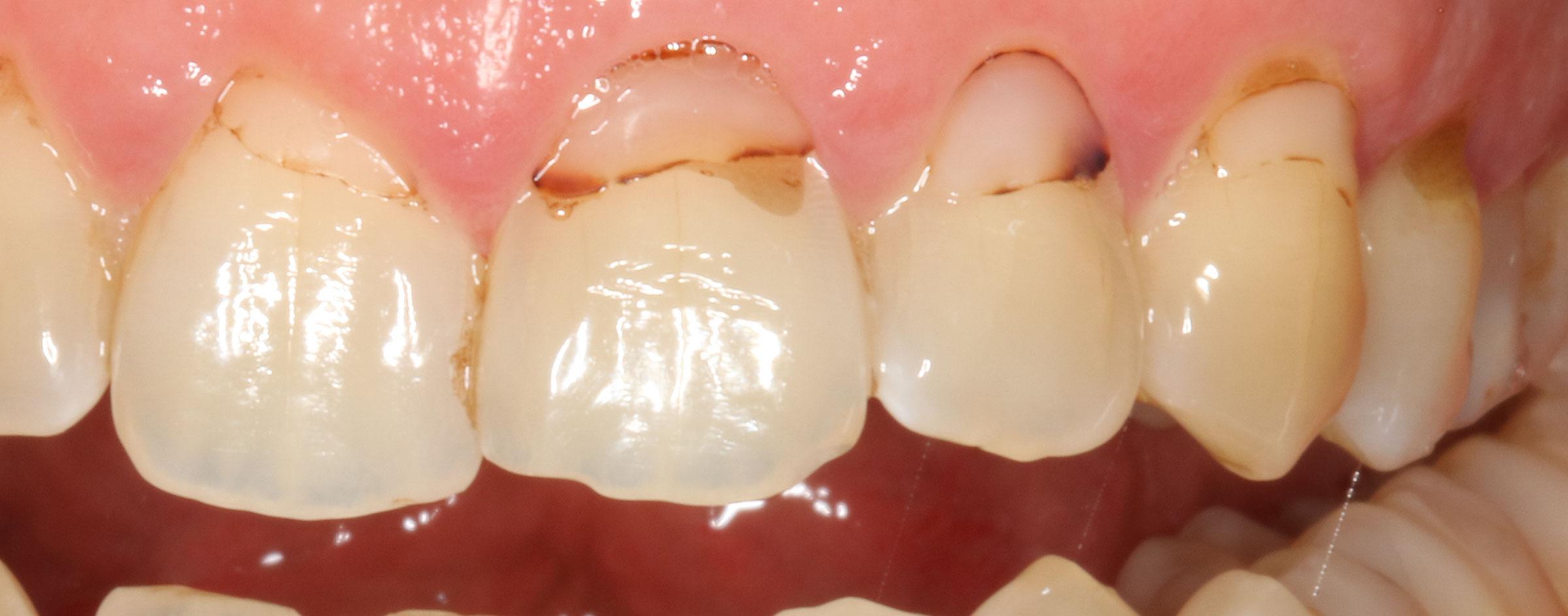 Zahnhalsfuellungen-insuff