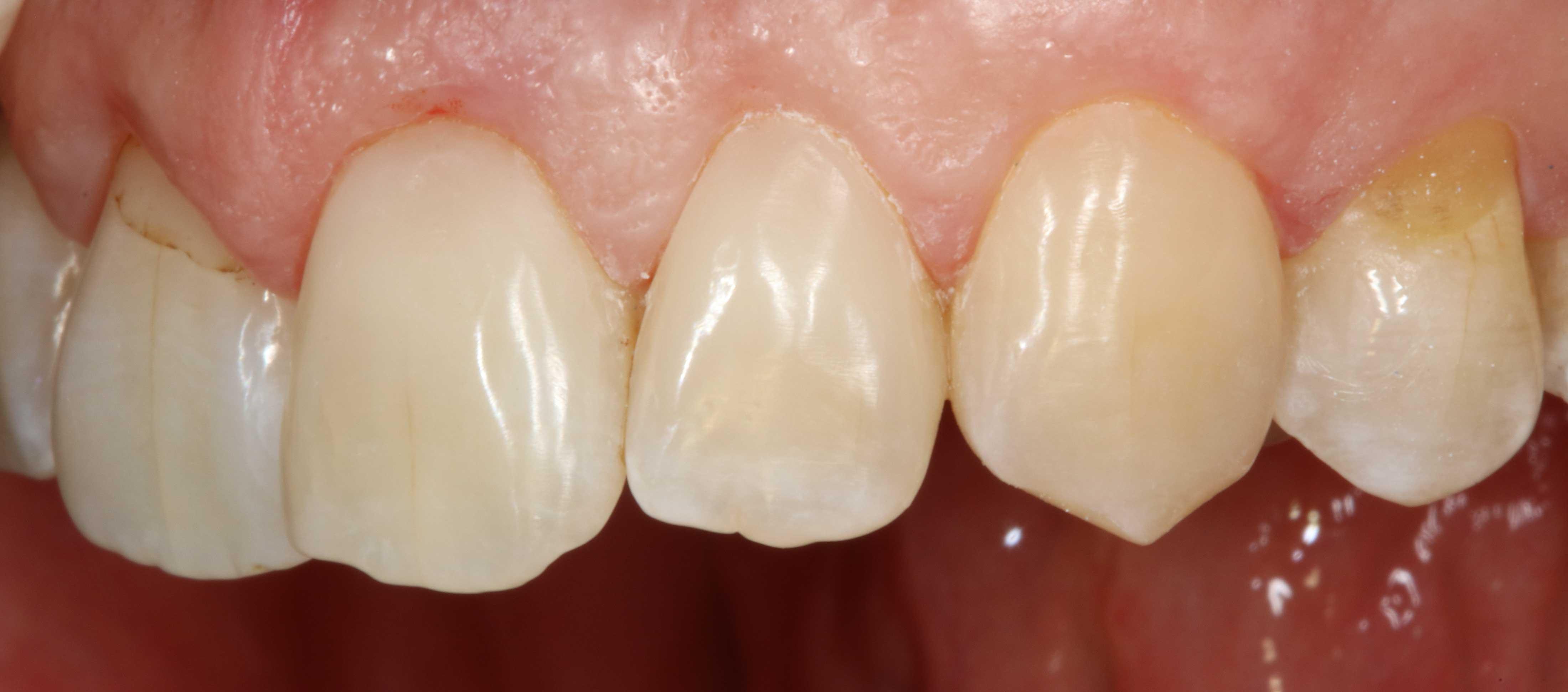 Zahnhalsrestaurationen-Komposit-b
