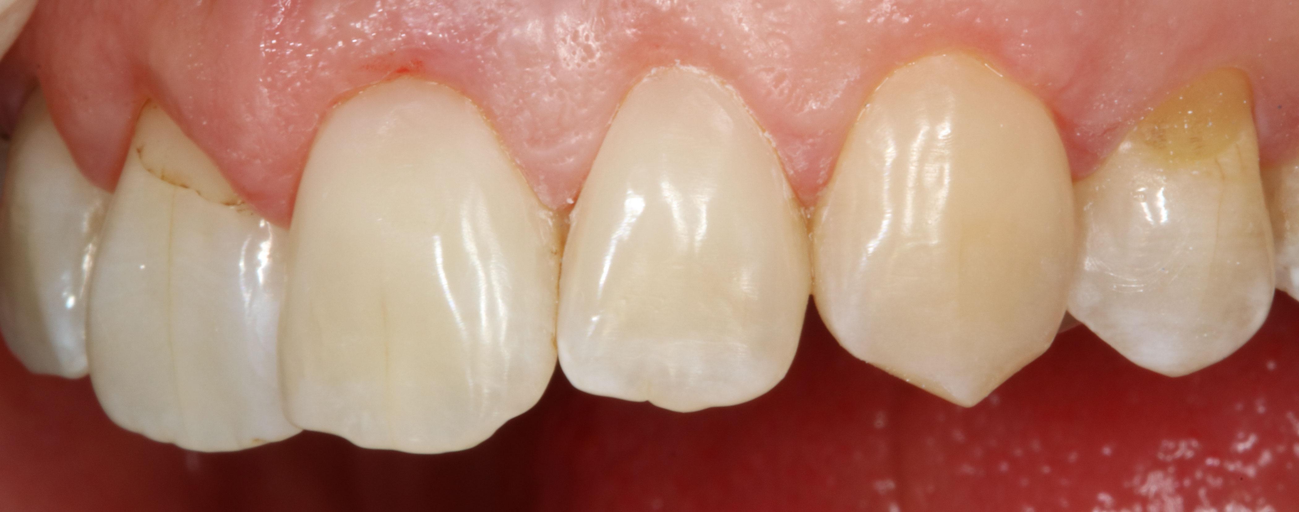 Zahnhalsrestaurationen-Komposit