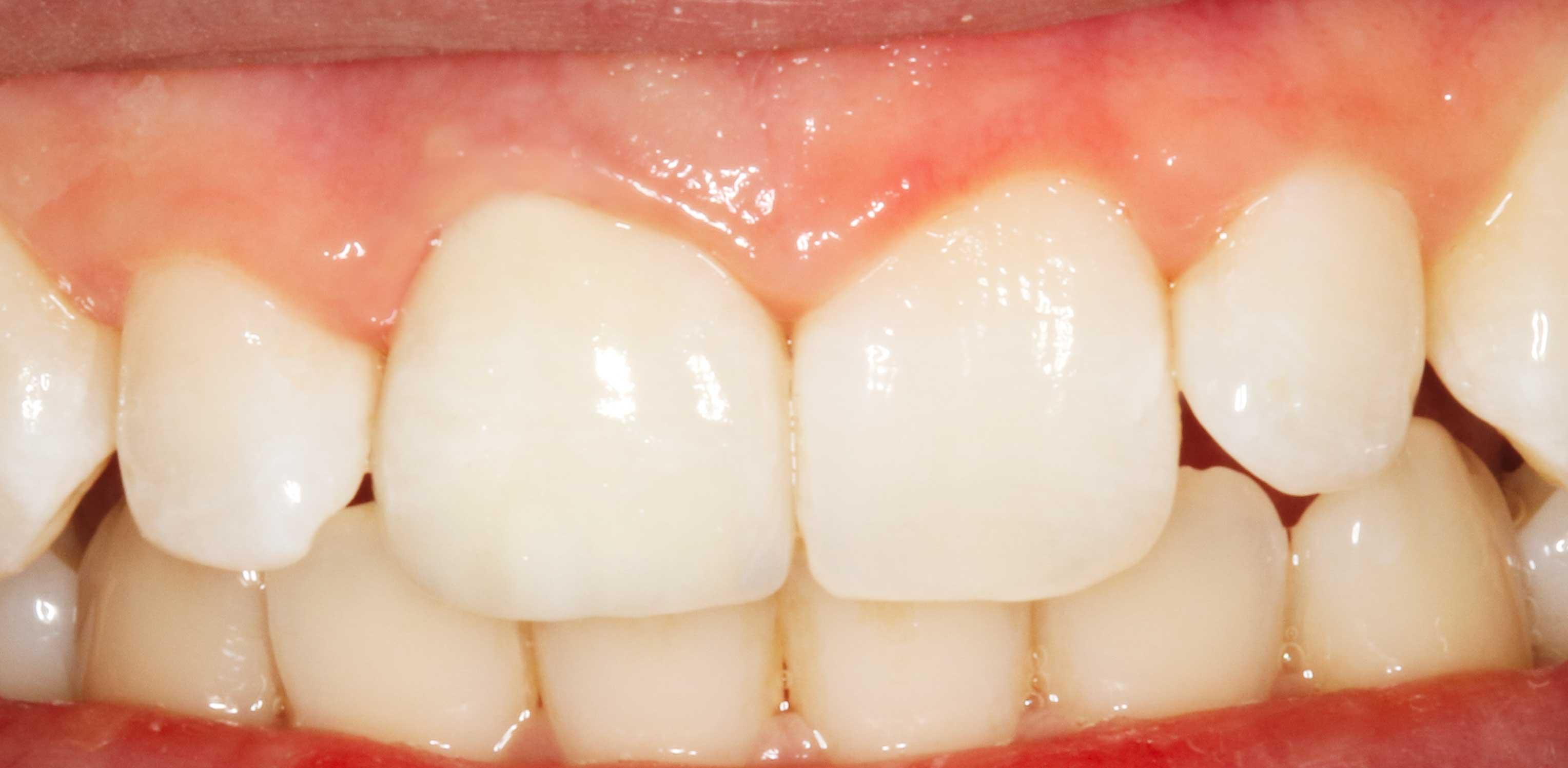 smile-1c-Detail