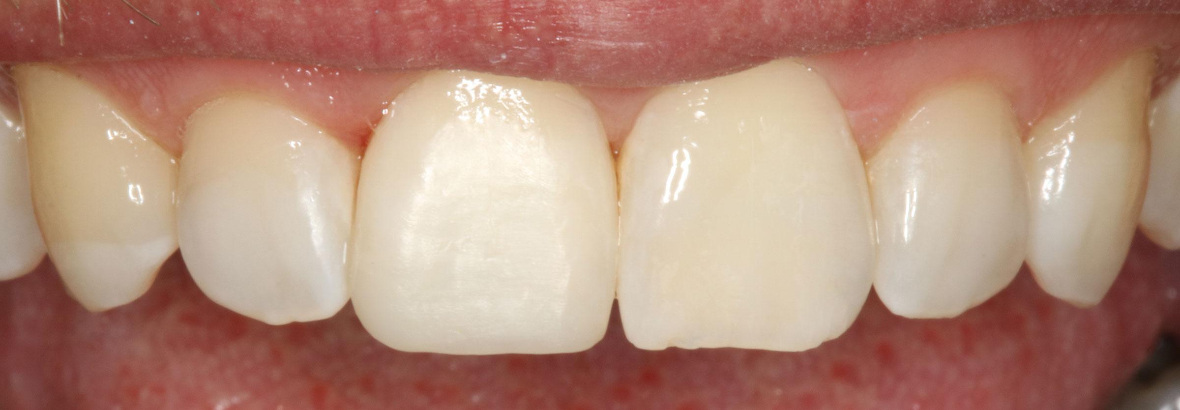 11-bleichen-und-komposit-lippenlinie