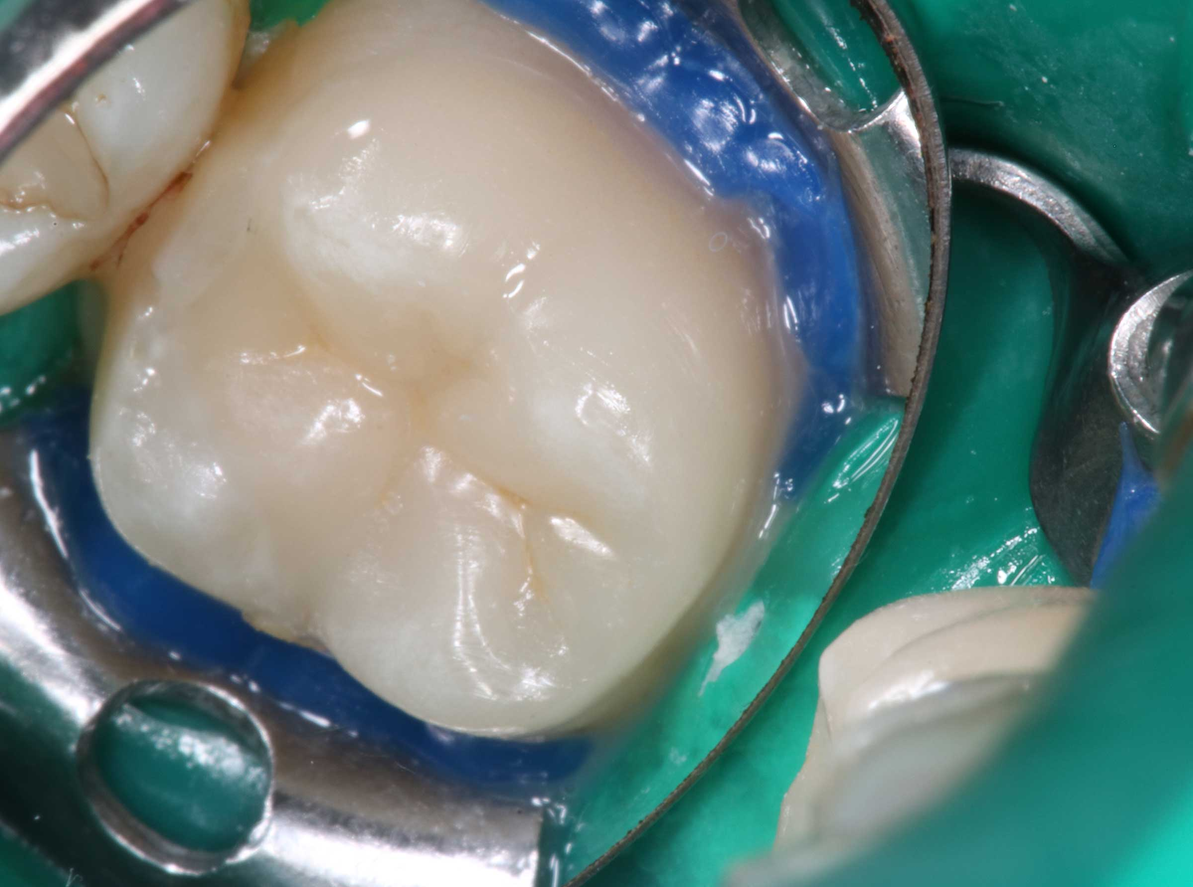 Abgeknirschte Zähne Reparieren