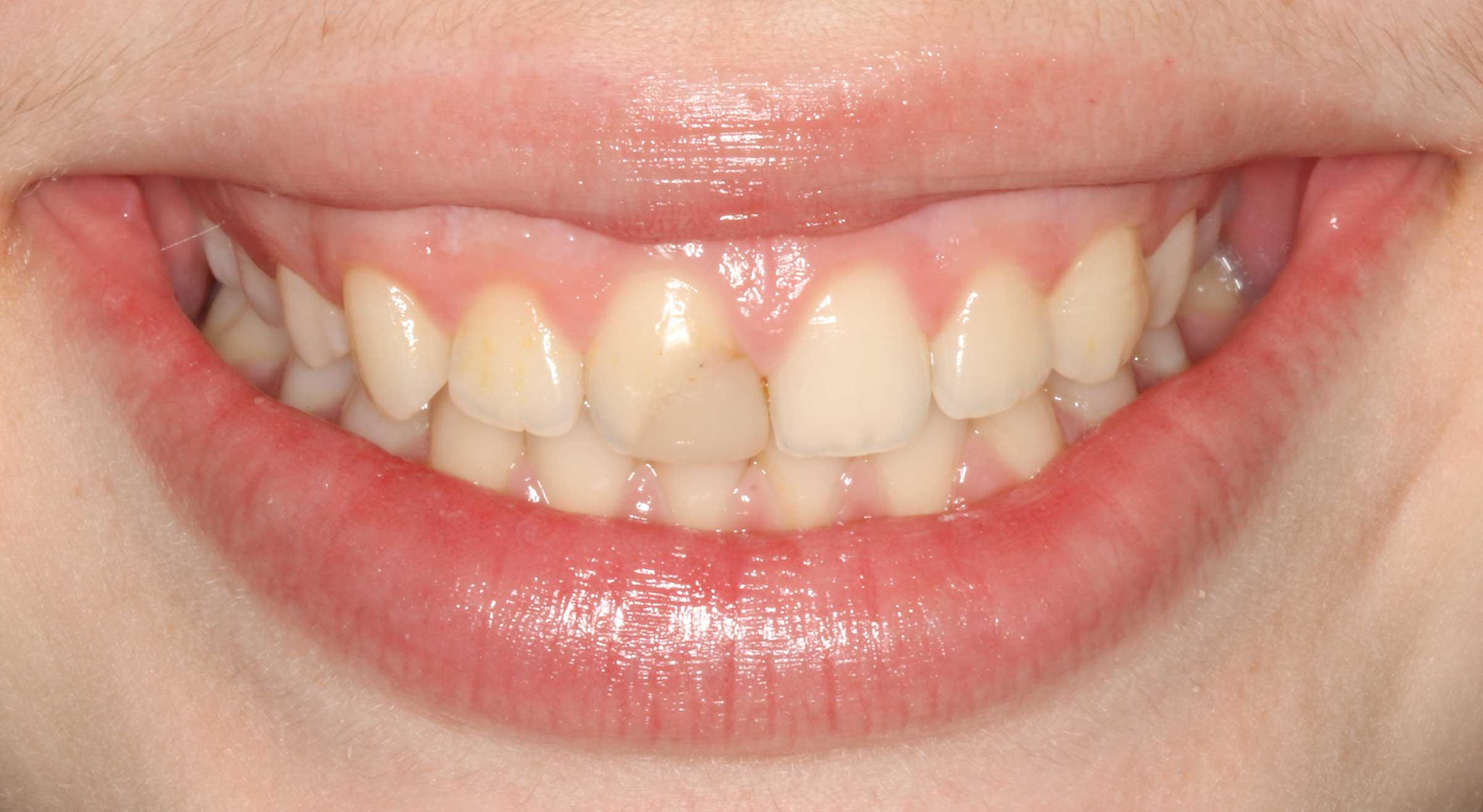 abgebrochener zahn ankleben